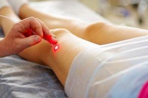 Мифы и правда о лечении варикозной болезни вен