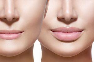 Увеличение губ (пластические операции и инъекции)