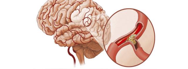 Что такое ангиодистония по гипертоническому типу
