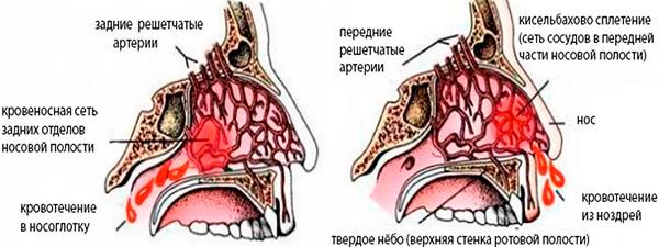 Когда идет кровь из носа это какое давление: низкое или высокое