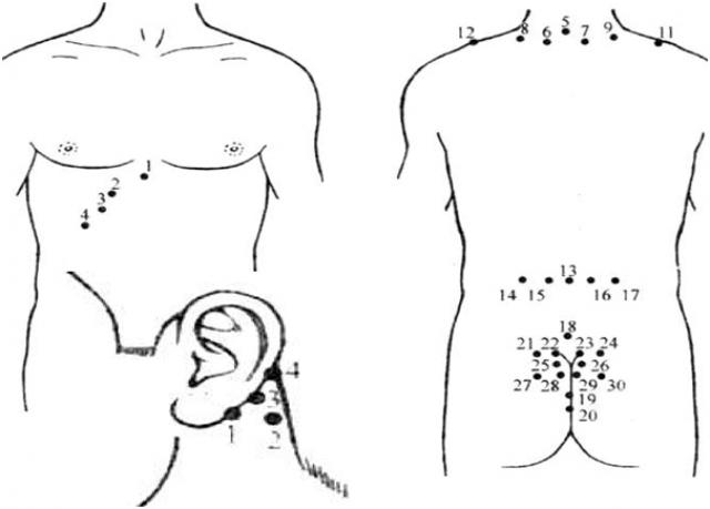 Гирудотерапия при гипертонии: точки постановки, отзывы