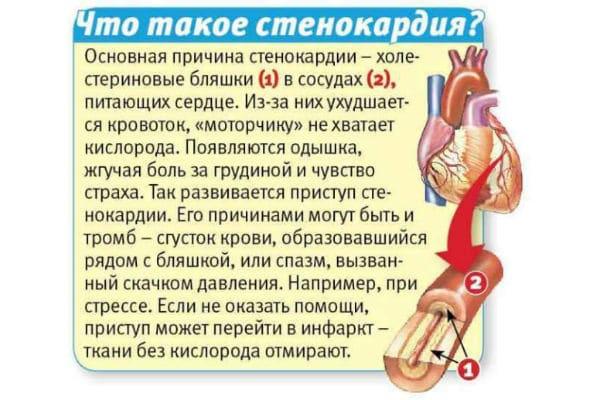 Как отличить инфаркт от приступа стенокардии