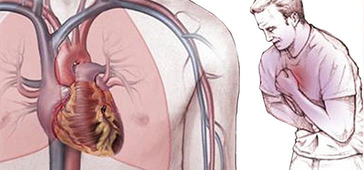 Что принимать при стенокардии с пониженным давлением