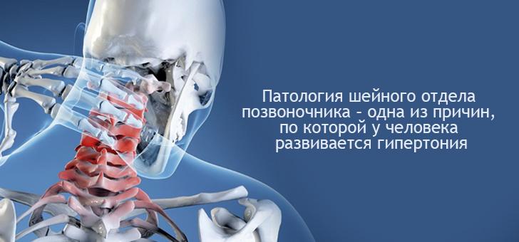 Связь шейного отдела и гипертонии