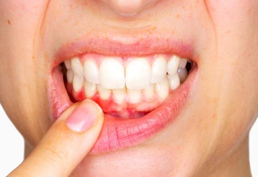 Кровоточивость десен – причины и лечение