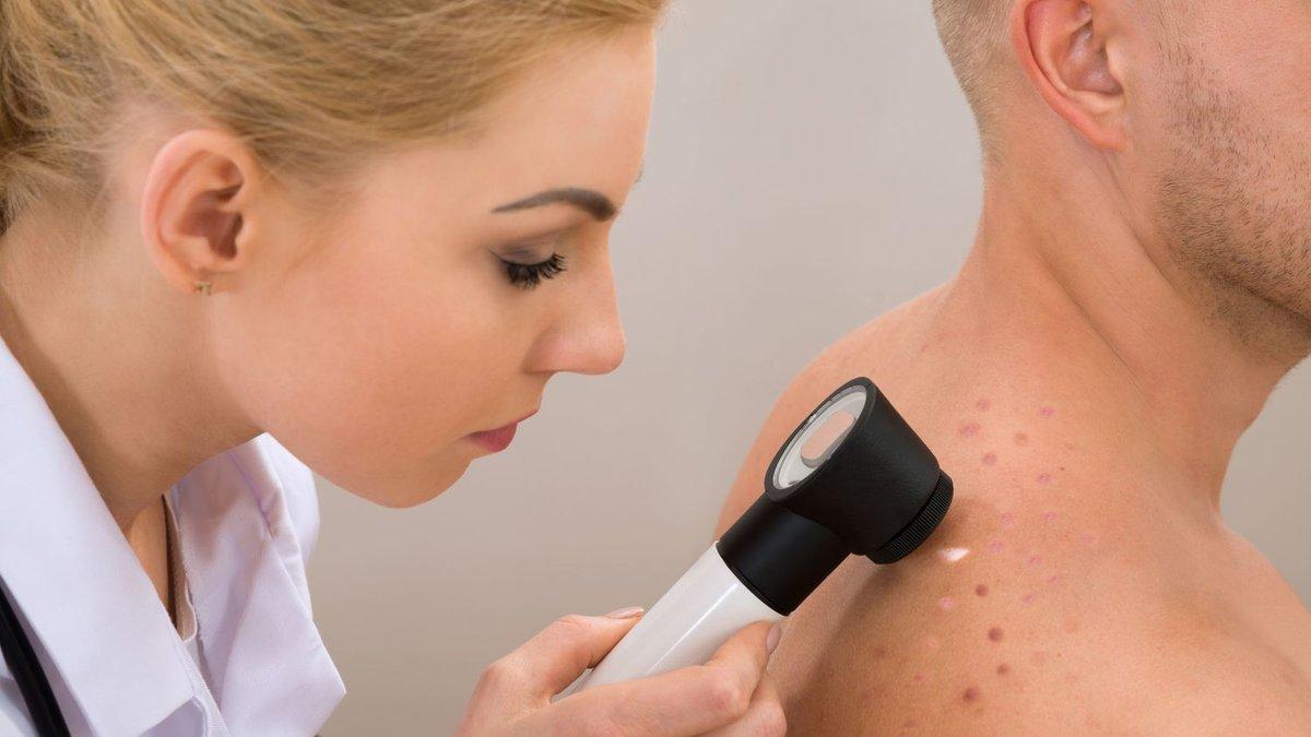 Бактериальные кожные заболевания - как их диагностировать?